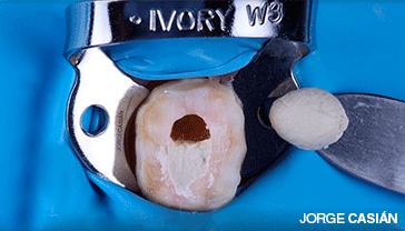 NuSmile NeoMTA – Tratamiento de la Pulpa Dentaria
